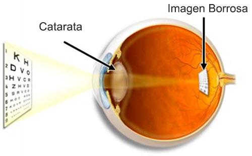 cataratas-oculares-ojos-diagrama